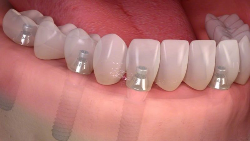 6 steps to hire a specialist for dental implant